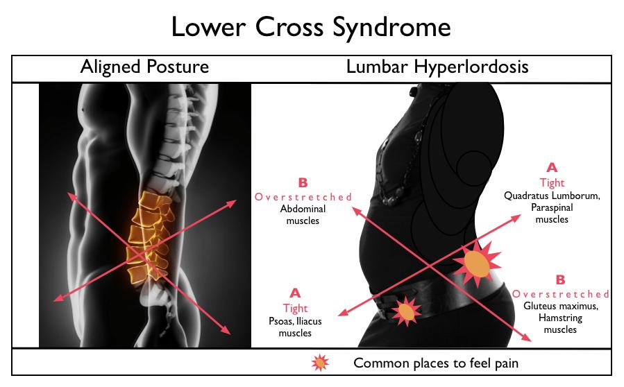 back pain  Primal Patterns