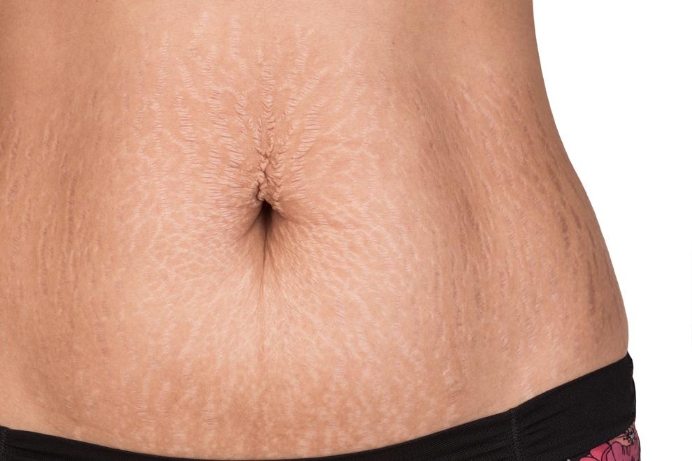 Hautstraffung Skin Tightening mit Lasern Dr Peter Schulze
