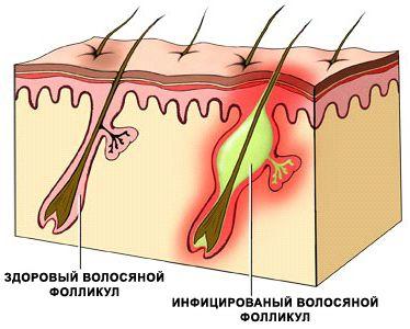 Как лечить воспаление волосяной луковицы. Фолликулит в паху