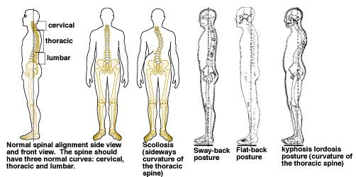 posture alignment chair zody task how to improve for a healthy back good cleveland clinic is non profit academic medical center advertising on our site helps support mission we do not endorse products