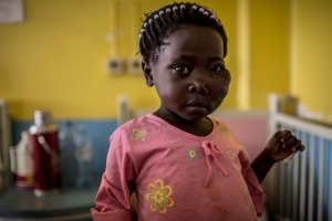 Flavia Anyesi, 4, at Mulago Hospital in Kampala, Uganda, has Burkitt lymphoma. She was first sent to a dentist to have a tooth pulled, but continued swelling in her jaw indicated to doctors that something else was wrong. Credit Charlie Shoemaker for The New York Times