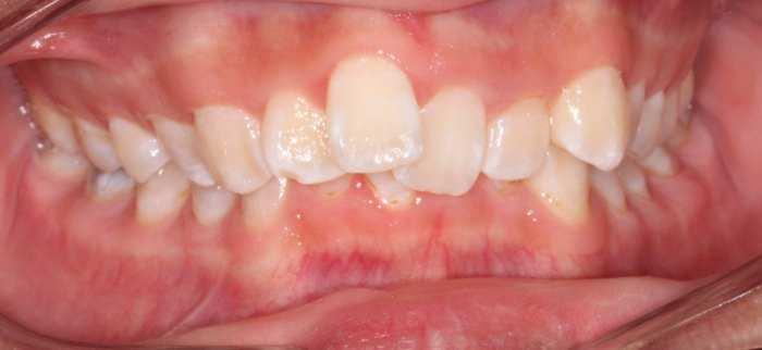 Orthodontic crowding