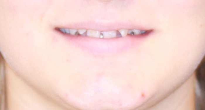 Initial Smile