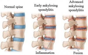 Ankylosing Spondylitis - Greg Kornegay Attorney at Law ...
