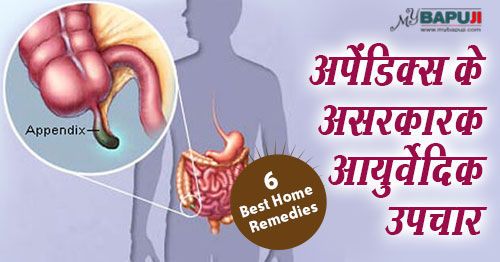 131-Top-6-Natural-Cures-For-Appendix-Pain,अपेंडिक्स, आंत्रपुच्छ शोथ(Appendicitis ,upchar