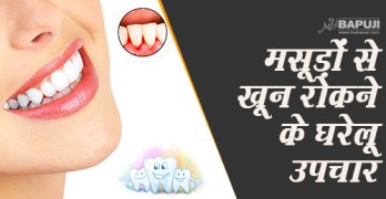 75--Home-remedies-for-bleeding-gums