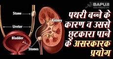 पथरी बन्ने के कारण व उससे छुटकारा पाने के असरकारक प्रयोग   Kidney Stones: Causes, Symptoms, and Treatments