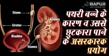 87-Kidney-Stones-Causes,-Symptoms,-and-Treatments