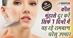 कील मुंहासे दूर करें सिर्फ 7 दिनों में यह रहे रामबाण घरेलु उपचार | Surprising Home Remedies for Acne