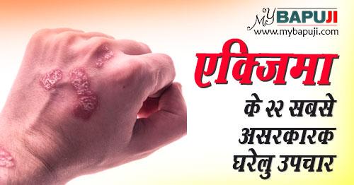 eczema ke gharelu upay nuskhe in Hindi