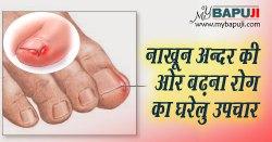नाखून अन्दर की ओर बढ़ना रोग का घरेलु उपचार | Nails growth towards inside