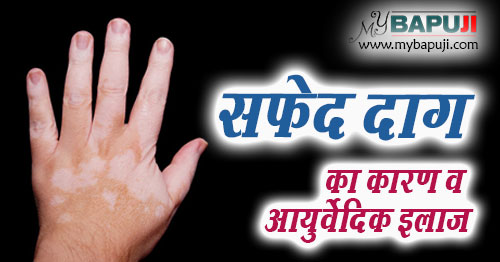 safed daag (vitiligo) treatment in ayurveda