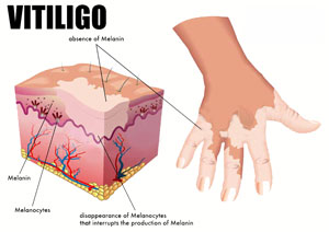 vitiligo safed daag ka ilaj in hindi