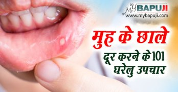 Mouth Ulcers muh ke chale ke Ayurvedic gharelu nuskhe in hindi