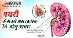 पथरी के 34 सबसे असरकारक घरेलू उपचार | Kidney Stone Treatment in Hindi