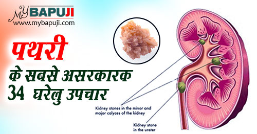Pathri ka Desi ilaj Kidney Stone Treatment in Hindi
