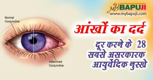 Aankh me Dard ka Gharelu Ayurvedic Upay in hindi
