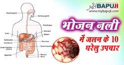 भोजन नली में जलन के 10 घरेलु उपचार | Bhojan nali me Jalan ka Gharelu Upchar