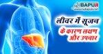 लीवर में सूजन का घरेलू उपचार   Liver me Sujan ke Karan Lakshan Dawa aur Upchar