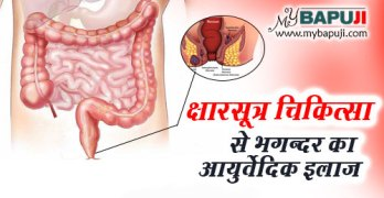 Kshar Sutra Treatment se Bhagandar ka Ayurvedic Ilaj in Hindi