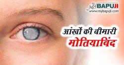 आंखों की बीमारी मोतियाबिंद : कारण ,लक्षण और इलाज