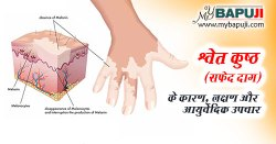 श्वेत कुष्ठ (सफेद दाग) का आयुर्वेदिक इलाज - Leucoderma Ayurvedic Treatment in Hindi