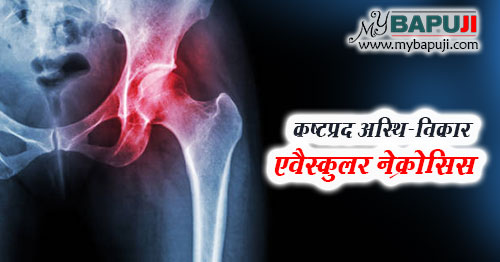 avascular necrosis ke lakshan karan ayurvedic ilaj dawa in hindi