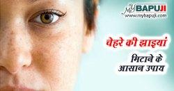 चेहरे की झाइयां मिटाने के 13 आसान उपाय - Chehre ki Chaiyan Hatane ka Tarika in Hindi