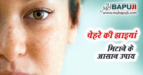 Chehre ki Chaiyan Hatane ka upay nuskhe aur Tarika in Hindi