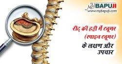 रीढ़ की हड्डी का ट्यूमर (स्पाइन ट्यूमर) - Spinal Tumor in Hindi