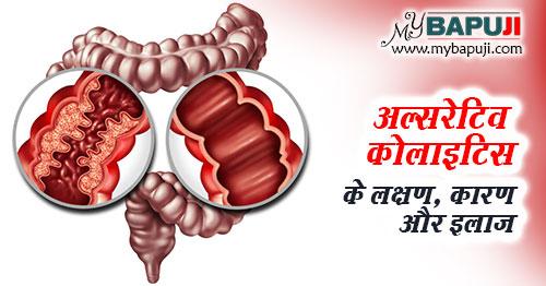 ulcerative colitis ke karan lakshan ilaj aur parhej in hindi
