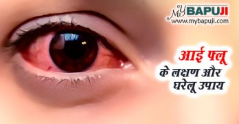 Eye Flu ke Karan Lakshan aur Upchar in Hindi