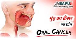 मुंह का कैंसर (ओरल कैंसर) एवं दांत - Oral Cancer And Teeth
