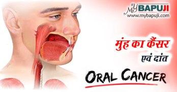 oral cancer ke karan lakshan aur bachne ke upay