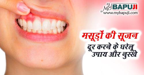 masudo ki sujan dur karne ke gharelu upay in hindi