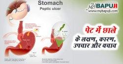 पेट के छाले – All about Peptic Ulcer in Hindi