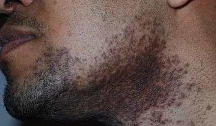 Pseudofolliculitis Barbae Treatment Tips
