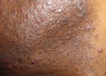 How to prevent razor bump