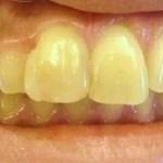 現役歯科医師が本気で作ったホームホワイトニング!これは人気出るはずだよ・・・