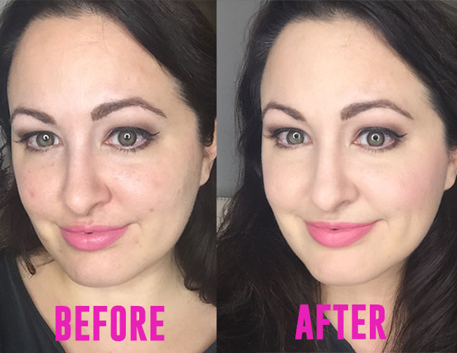 No Photoshop Before And After Makeup To Cover Acne My Beauty Bunny Cruelty Free Lifestyle Blog