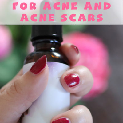 DIY Recipes for Acne and Acne Scars