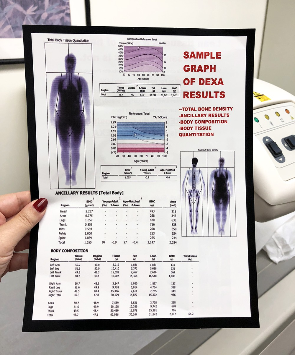 Dexa Scan - My Second SculpSure Body Contouring Treatment at LaserXX - Wedding Prep featured by popular Los Angeles beauty blogger My Beauty Bunny
