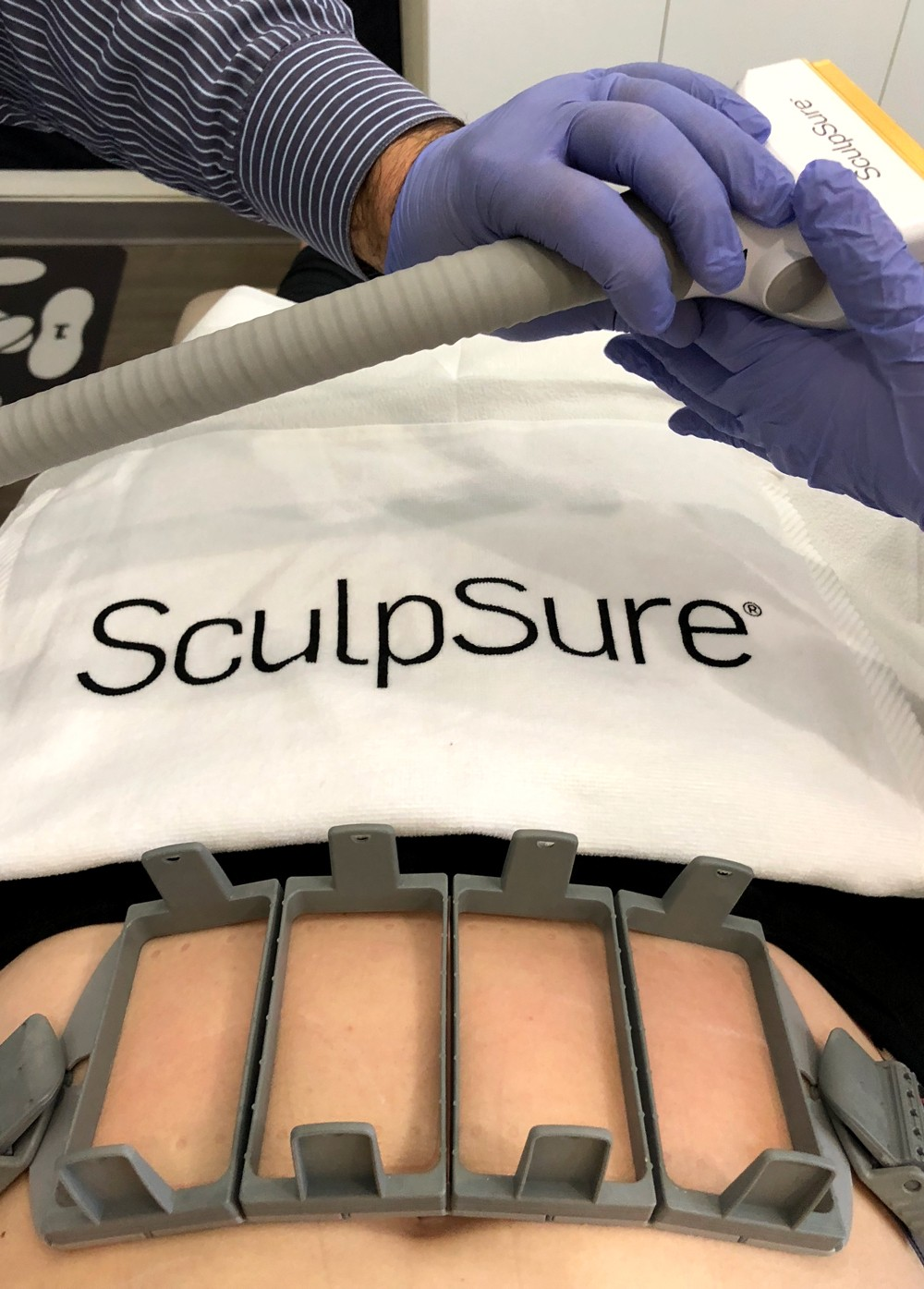 SculpSure Body Contouring | Body | My Beauty Bunny - the blog