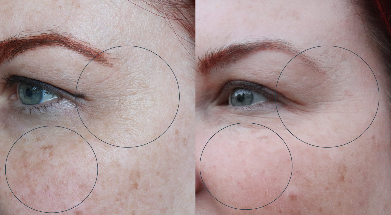Skin Laundry Ultra Fractional Laser Treatment Review - Before and After