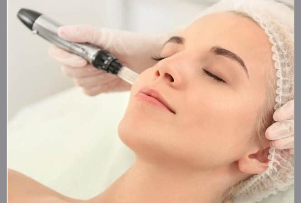Microneedling at Home during quarantine.