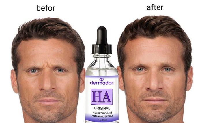 Hyaluronic Acid serum before and after
