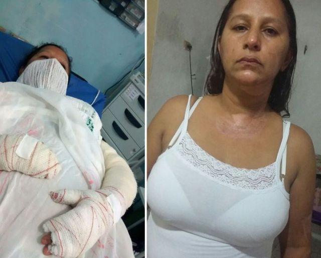 Pele de Tilapia Curando Queimaduras de Maria da Silva