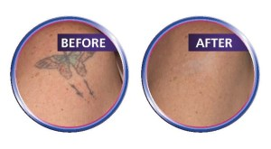 Laser Tattoo Removal 2
