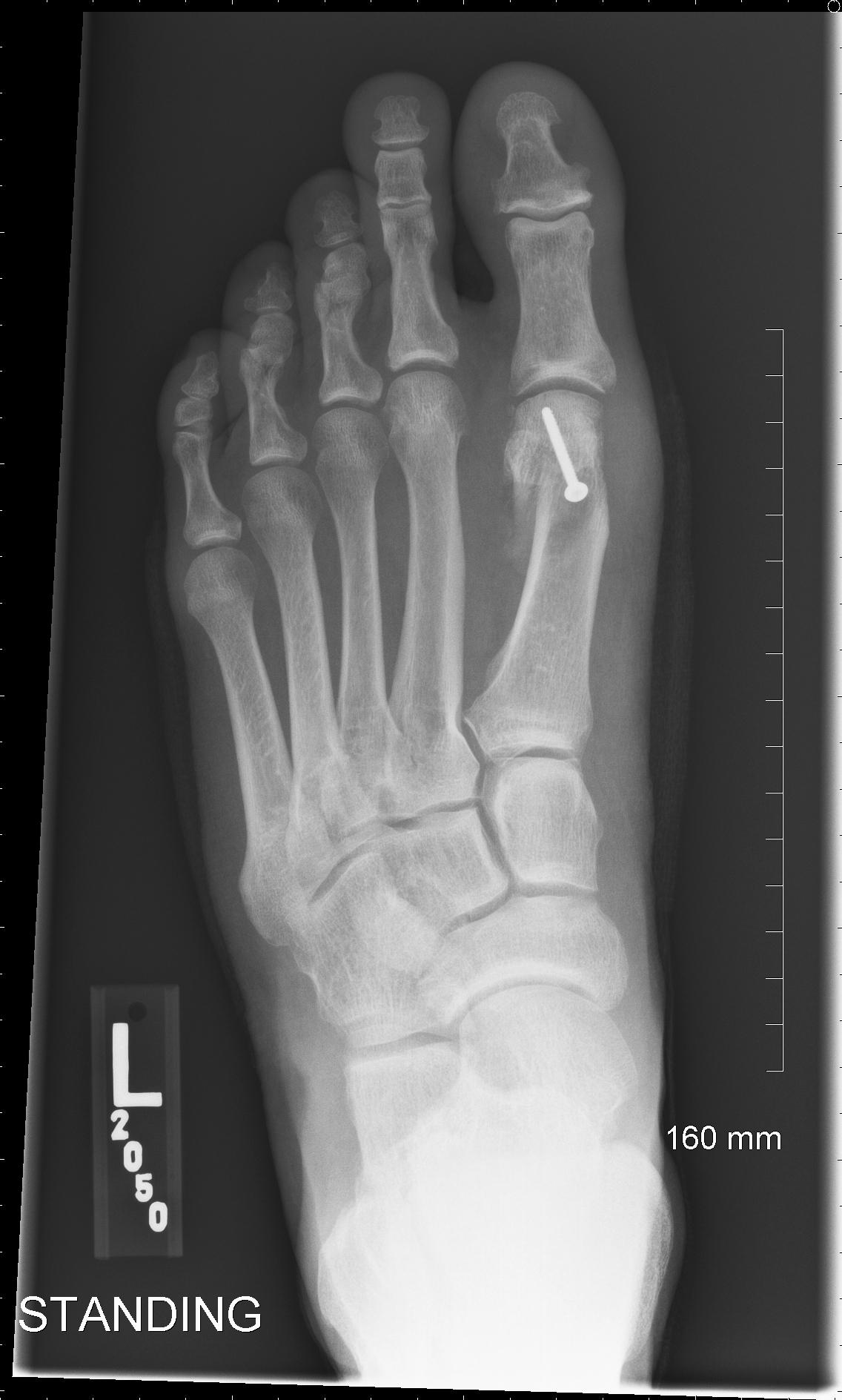 Bunion X Rays