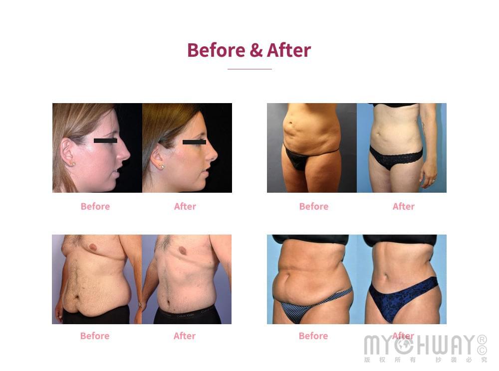 body slimming fat loss machine